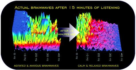 Gehirnwellen Sitzung